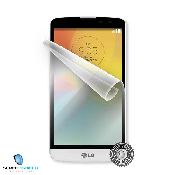 Screenshield™ LG D331 L Bello
